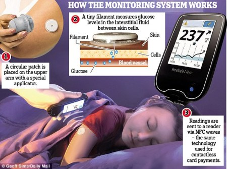 NFC Glucose monitoring system (c) Geoff Sims / Daily Mail